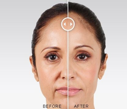 before and after juvederm photo