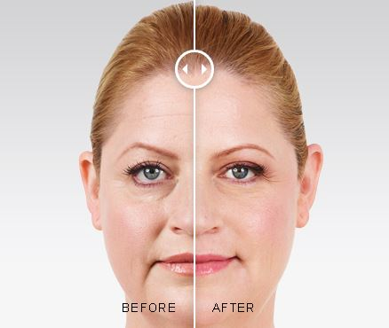 juvederm™ in Aurora before and after photo
