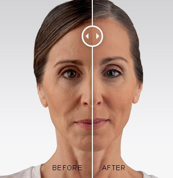 before and after for voluma treatment