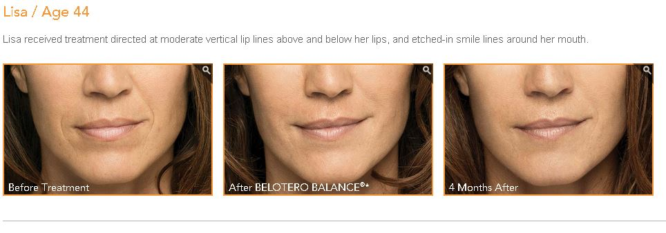 belotero treatment before and after