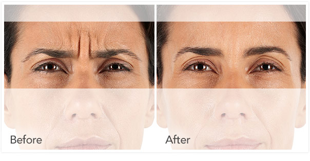 xeomin wrinkle filler before and after
