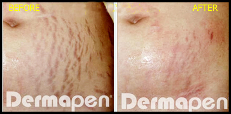 dermapen before and after for stretch marks