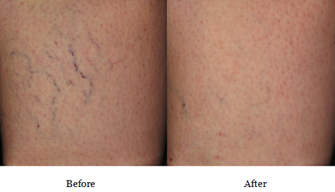 before and after sclerotherapy treatment