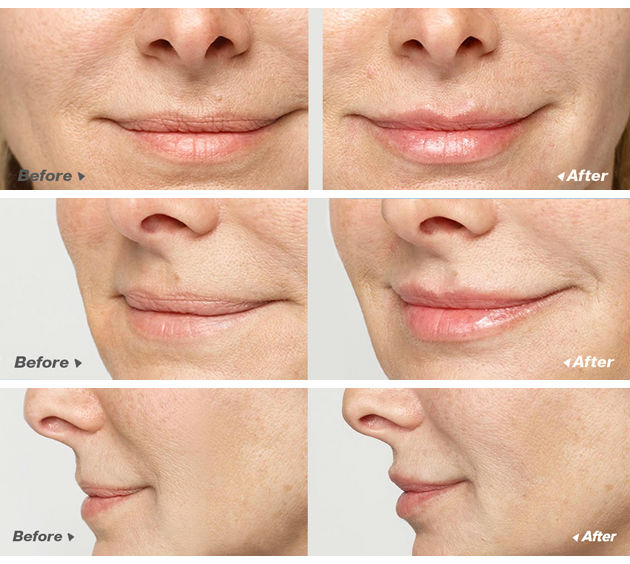 Wrinkles Treatment Naturally