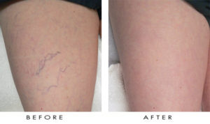 laser vein treatment on legs before and after