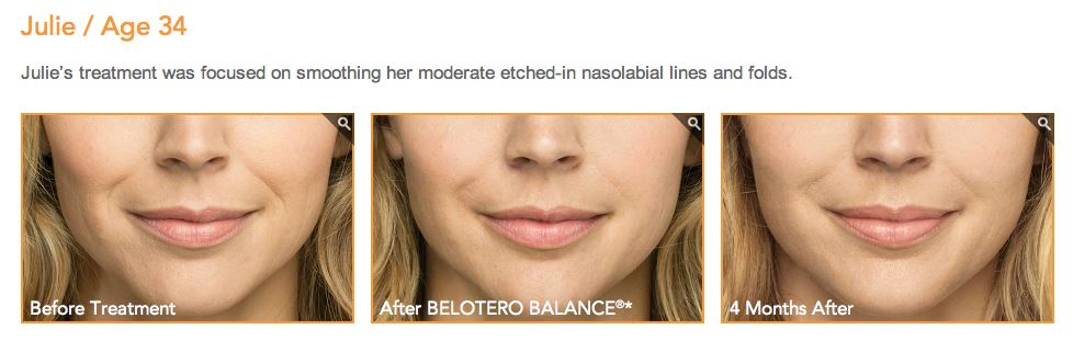 belotero balance skin treatment