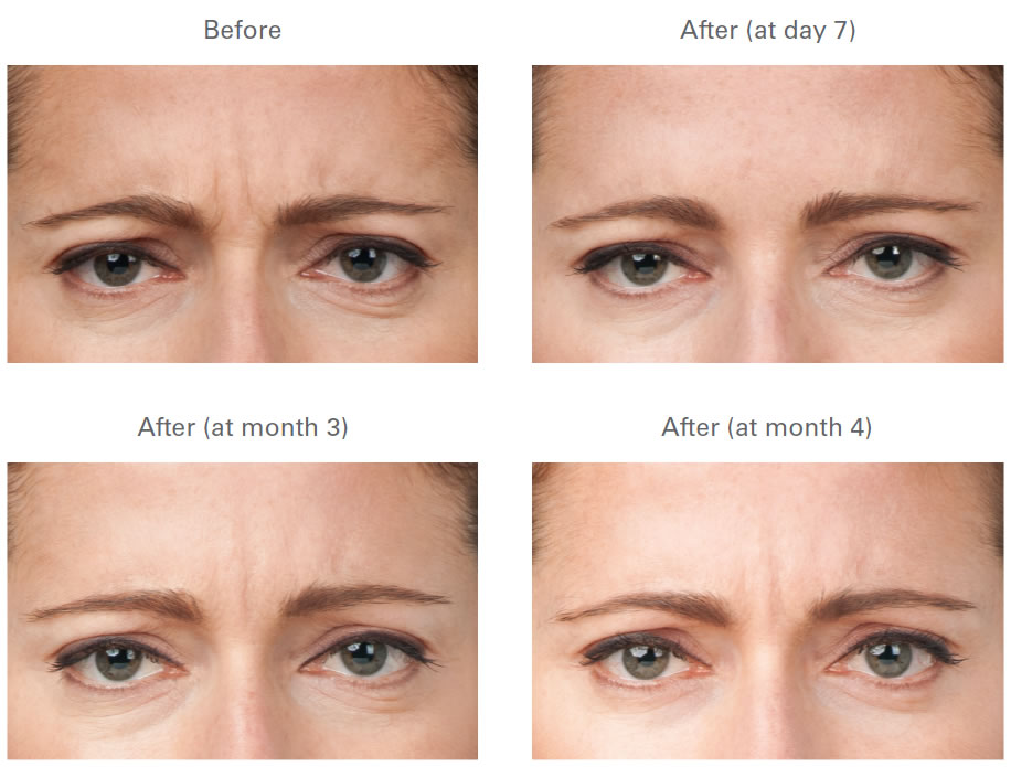 Botox Injections Cosmetic Injectables Nonsurgical Procedure
