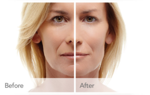 Restylane Treatment in Denver, CO before and after