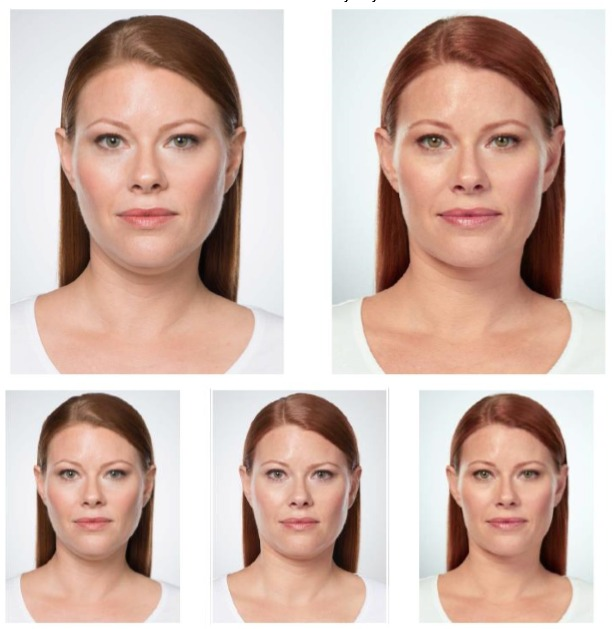 kybella before and after pictures