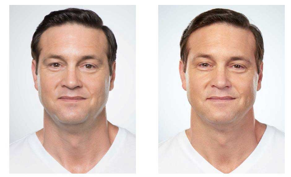 Before and After Kybella treatments on Dave