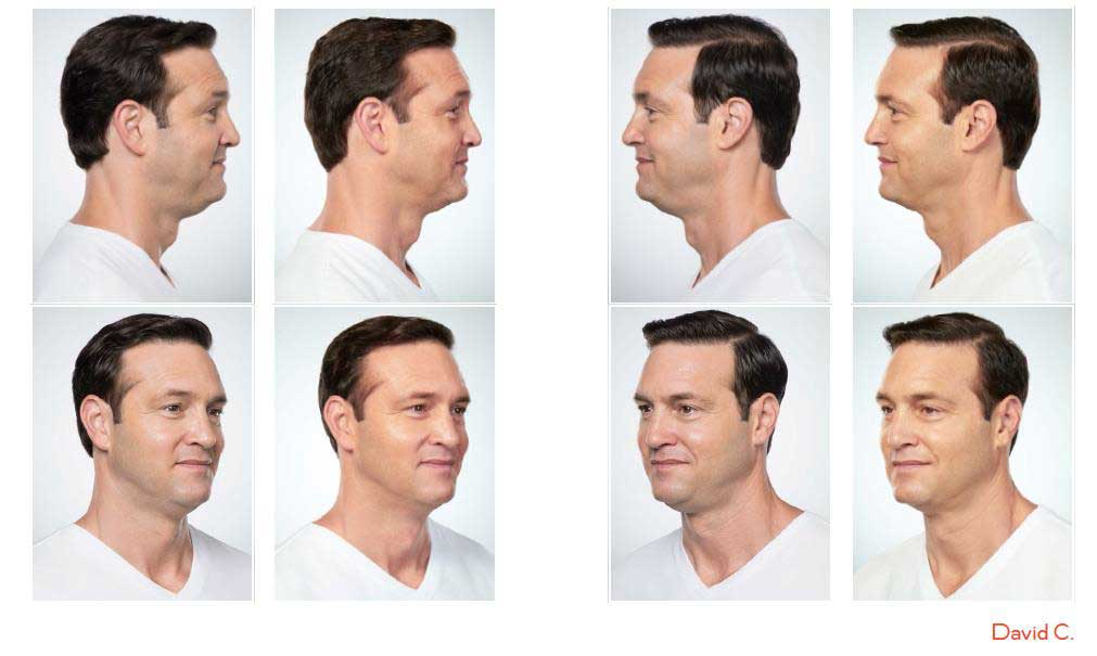 kybella treatment before and afters on male