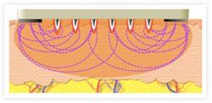 Fractora diagram