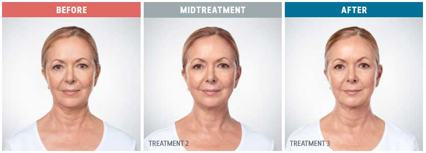 front view of kybella treatments before and after