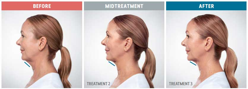 kybella treatment before and afters