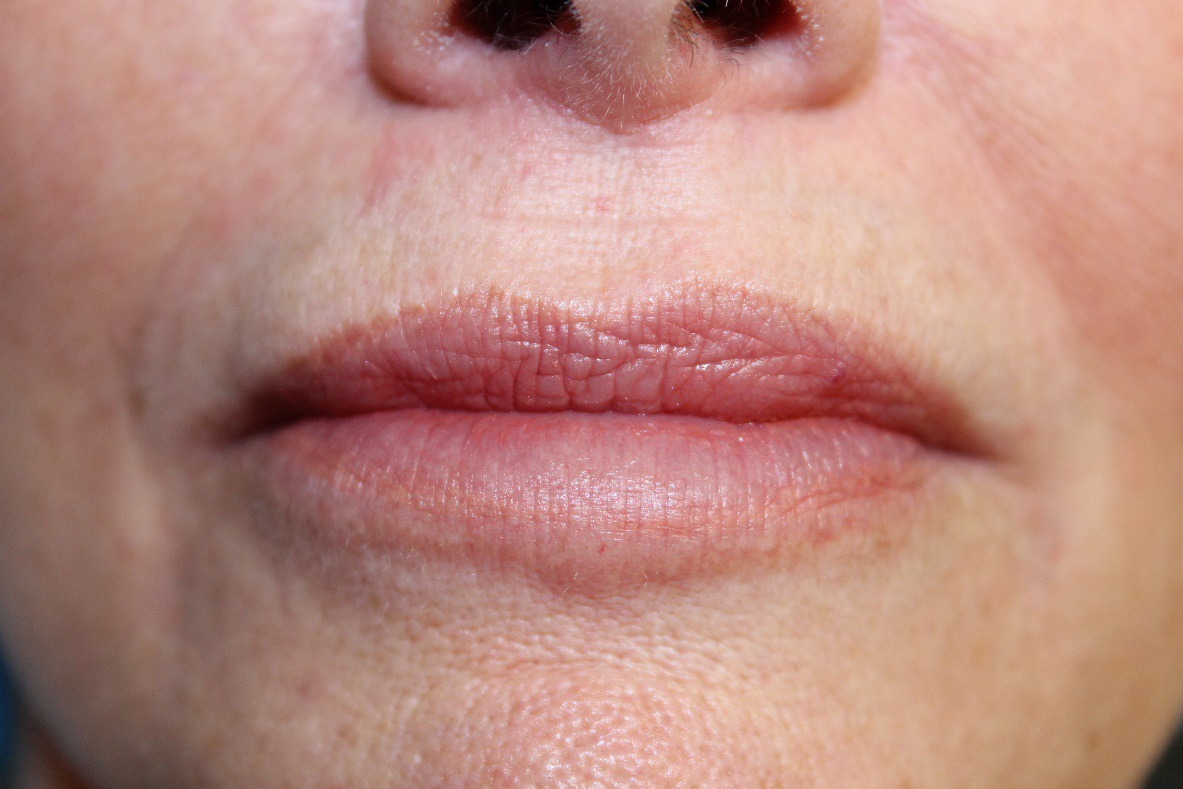 Cathy after Versa™ in lips
