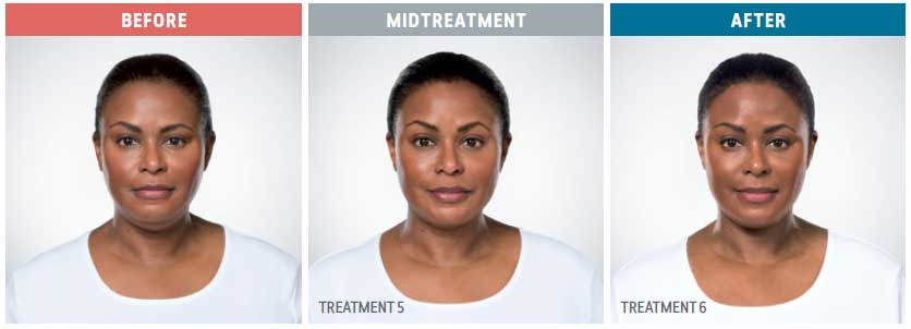 before, midtreatment, after kybella treatment front view