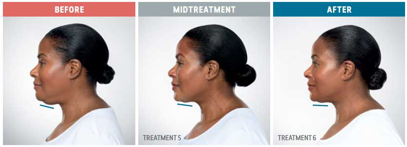 side view of kybella treatment before, midtreatment and after