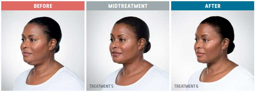 kybella treatment before, mid treatment, and after
