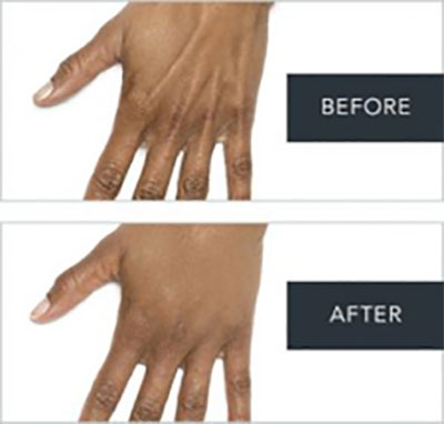 Before and After Radiesse Treatments on hands