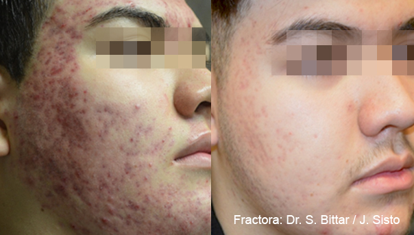 fractora fractional resurfacing treatment for acne