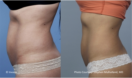 bodyfx treatment in aurora co for stomach fat deposits