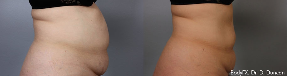 BodyFX treatments in Aurora for stomach fat deposits