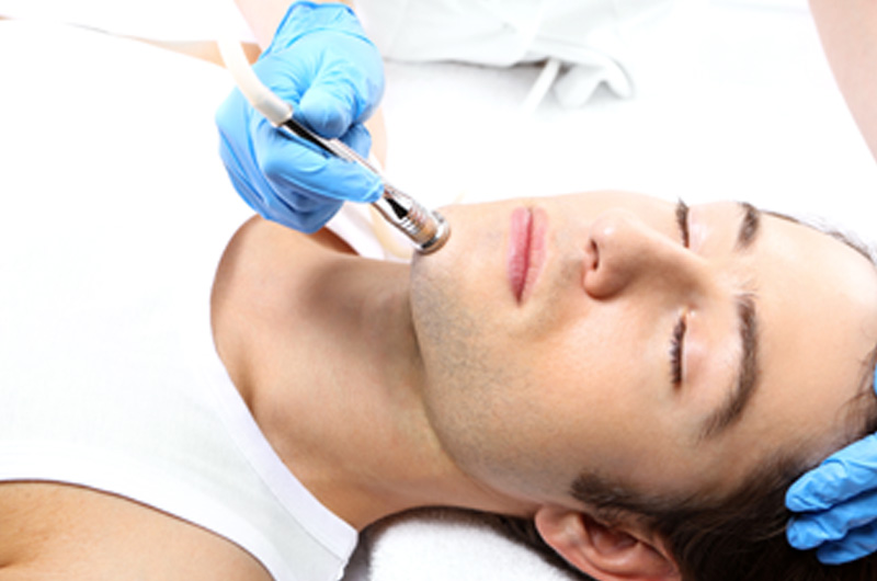 diamond tip microdermabrasion treatment on young male