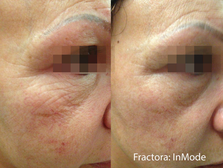 fractora skin treatments in aurora, co for under eye wrinkles