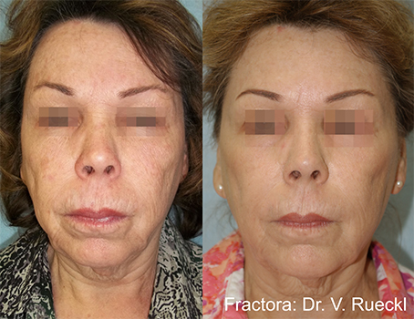 fractora skin treatments in aurora co for anti-aging