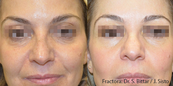 fractora skin treatments in aurora, co before and after