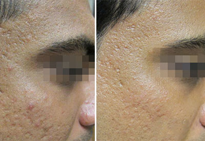 fractora fractional resurfacing treatment for acne scars