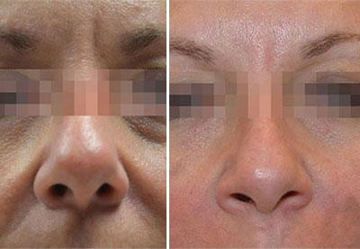 fractora anti aging fractional resurfacing treatment