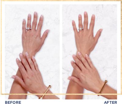 restylane lyft for hands