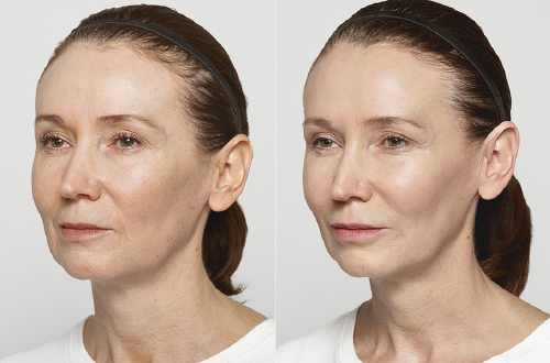 Restylane Lyft Before and After Treatment