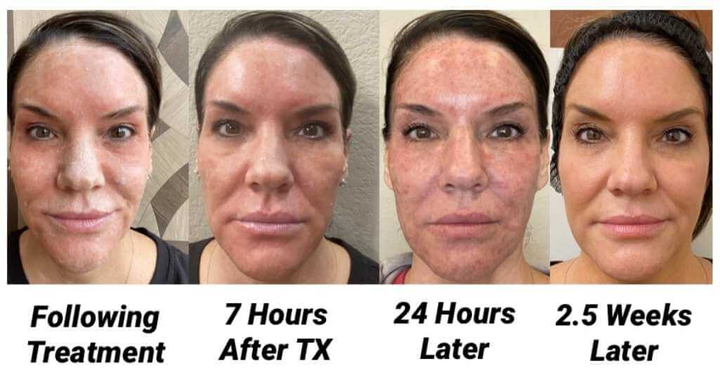 Before, during, and after pictures of Erbium Laser Treatment