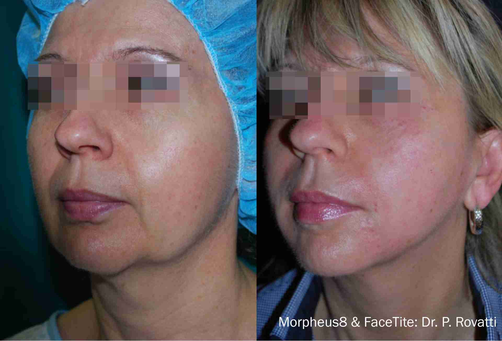 Morpheus8 FaceTite Before and After