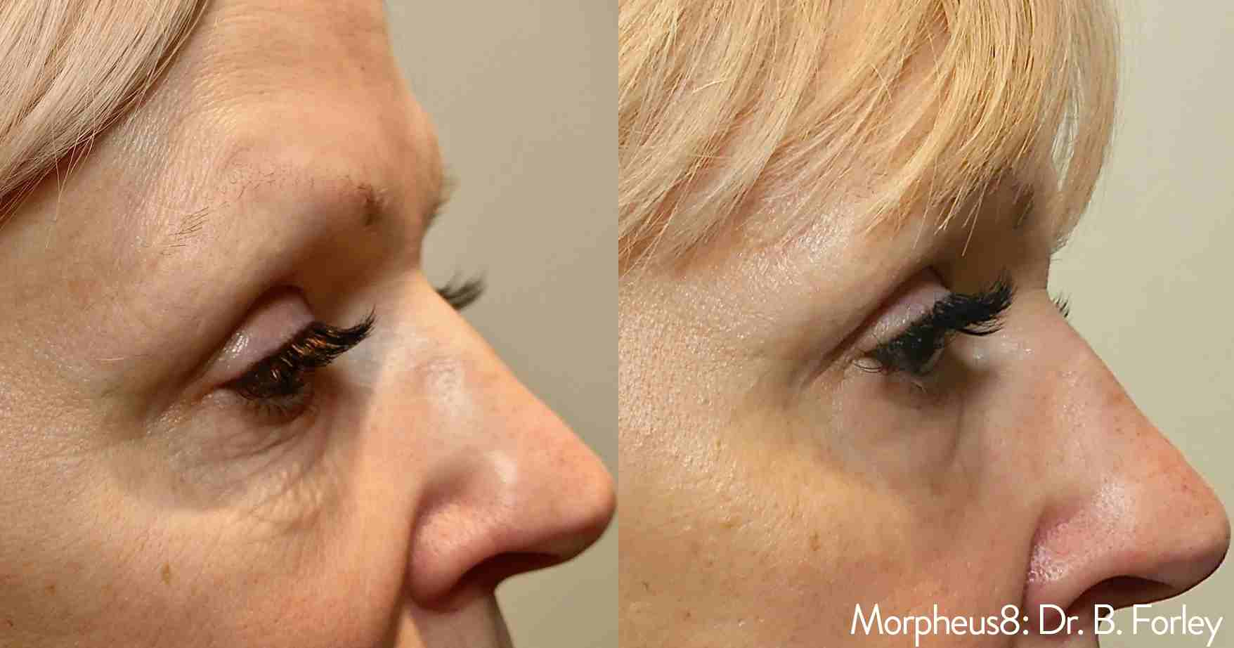 Morpheus8 Eye Before and After