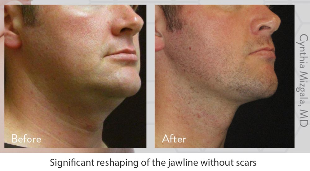 Man with Jawline FaceTite Treatment