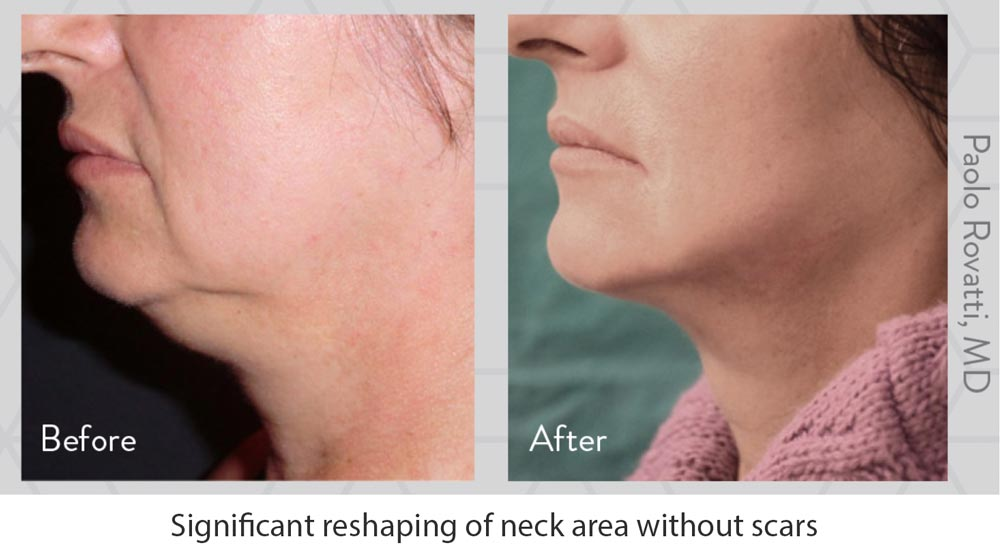 Woman with Jawline and Sagging Chin FaceTite Treatment